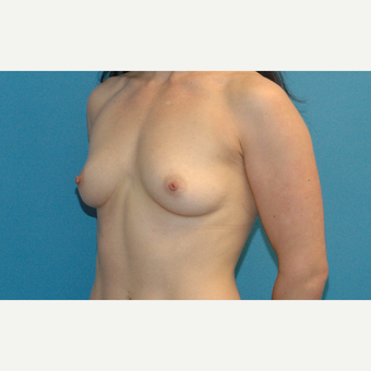 34 year old woman treated with Breast Implants before 3001082