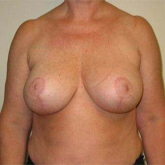 48 year old woman treated with Breast Implant Removal and Breast lift after 2285397