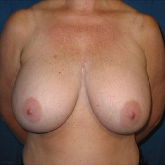 48 year old woman treated with Breast Implant Removal and Breast lift before 2285397
