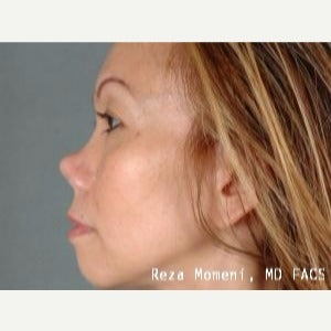 35-44 year old woman treated with Revision Rhinoplasty before 2029637