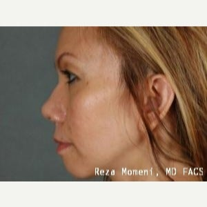 35-44 year old woman treated with Revision Rhinoplasty after 2029637