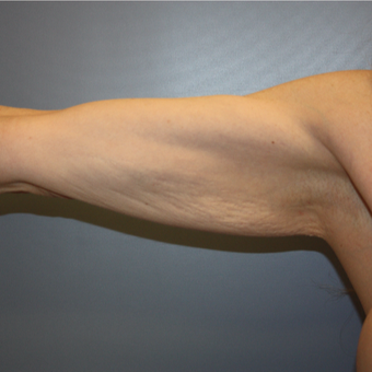 35-44 year old woman treated with Arm Lift before 3808280