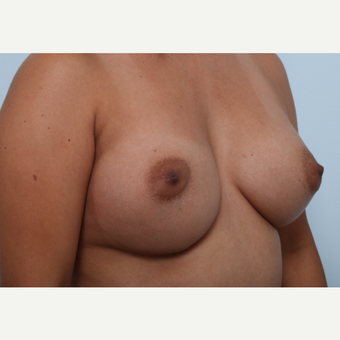 Breast Augmentation after 3345845