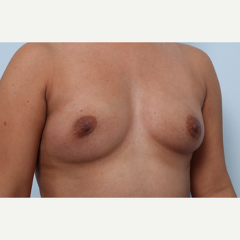 Breast Augmentation before 3345845