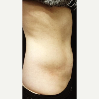 25-34 year old woman treated with CoolSculpting before 3671856