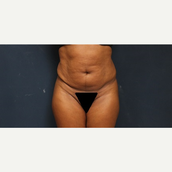 35-44 year old woman treated with Tummy Tuck before 3344870