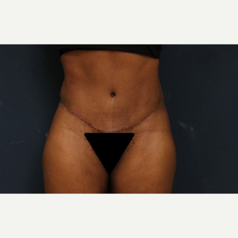 35-44 year old woman treated with Tummy Tuck after 3344870