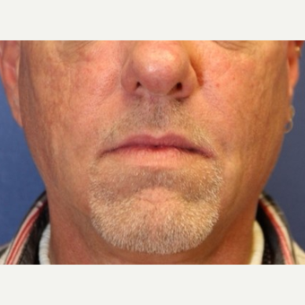 54 year old man with a Fat Transfer to bilateral cheeks after 3522920