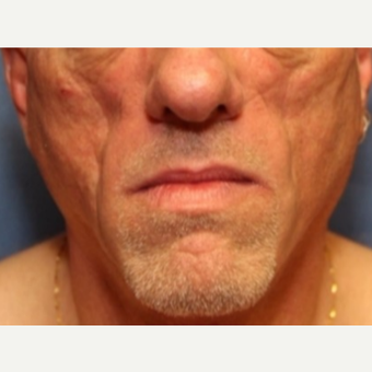 54 year old man with a Fat Transfer to bilateral cheeks before 3522920