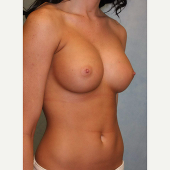 18-24 year old woman treated with Breast Augmentation after 3487396