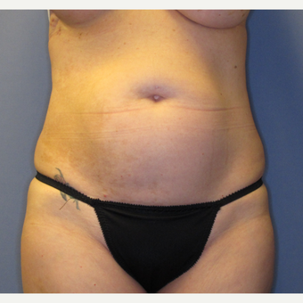 35-44 year old woman treated with Tummy Tuck before 3061755