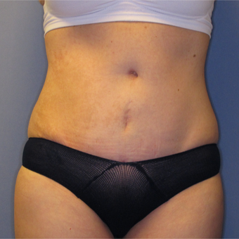 35-44 year old woman treated with Tummy Tuck after 3061755