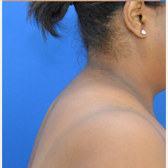 Buffalo Hump Removal with Liposculpture after 3804388