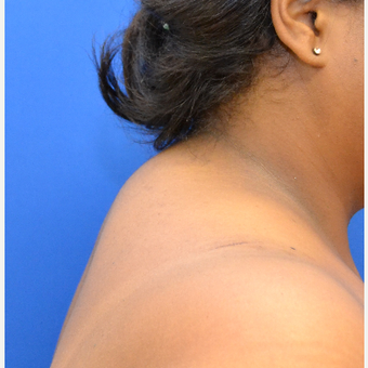 Buffalo Hump Removal with Liposculpture before 3804388
