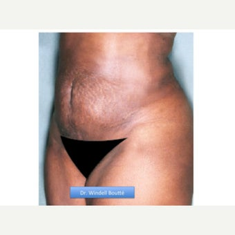 35-44 year old woman treated with Smart Lipo after 1651739