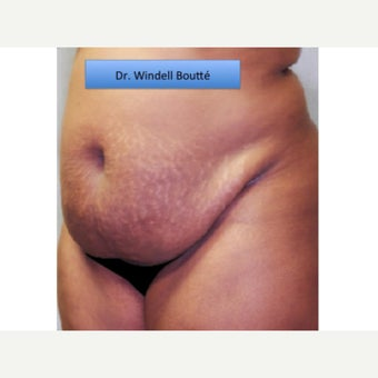 35-44 year old woman treated with Smart Lipo before 1651739