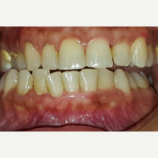 25-34 year old woman treated with Teeth Whitening before 3176914