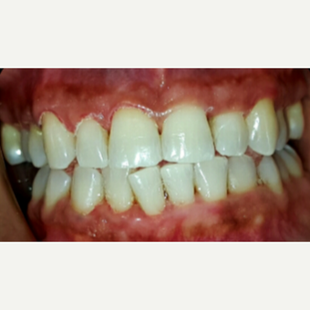 25-34 year old woman treated with Teeth Whitening after 3176914