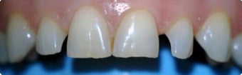 45-54 year old woman treated with Dental Bonding before 3031470