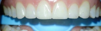 45-54 year old woman treated with Dental Bonding after 3031470