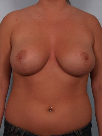 Breast Reduction after 690078