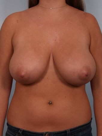 Breast Reduction before 690078