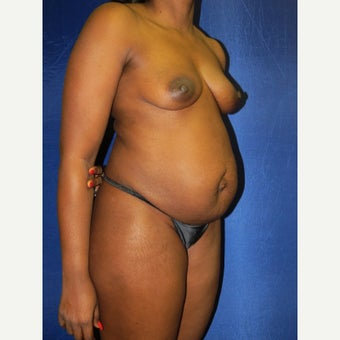 45-54 year old woman treated with Mommy Makeover before 3136074