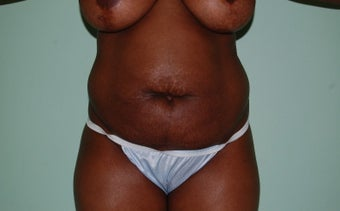 35-44 year old woman treated with Tummy Tuck before 2204934