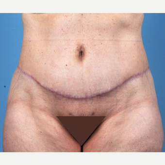 65-74 year old woman treated with Tummy Tuck after 3837510