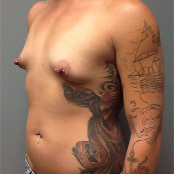25-34 year old woman treated with Breast Augmentation before 3202312