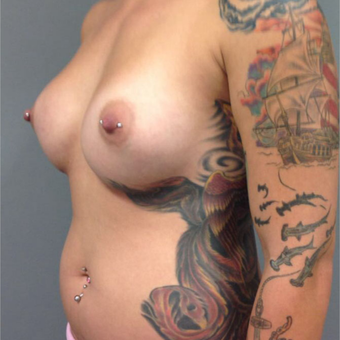 25-34 year old woman treated with Breast Augmentation after 3202312
