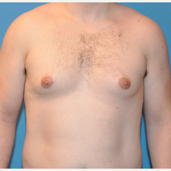 Male Breast Reduction in 26 year old with Gynecomastia before 3705370