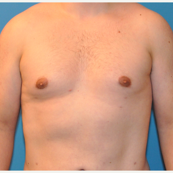 Male Breast Reduction in 26 year old with Gynecomastia after 3705370