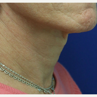 45-54 year old woman treated with Adam's Apple Reduction after 3741716