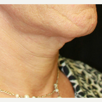 45-54 year old woman treated with Adam's Apple Reduction before 3741716