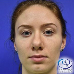 18-24 year old woman treated with Rhinoplasty before 3325403