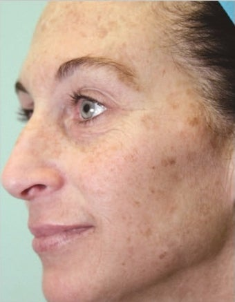 25-34 year old woman treated with MicroLaser Peel