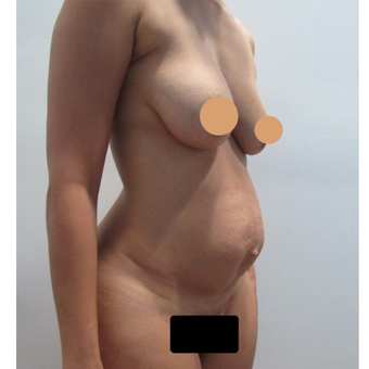 25-34 year old woman treated with Tummy Tuck before 2815082