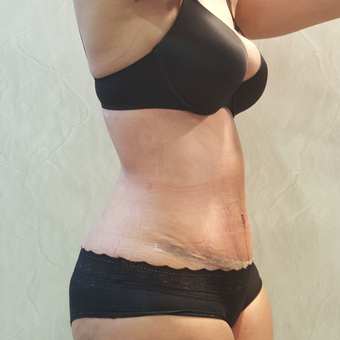 25-34 year old woman treated with Tummy Tuck after 2815082