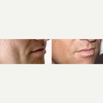 Sculptra before 2096682