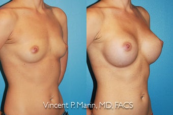 Breast Augmentation - Silicone Implants after 1053340