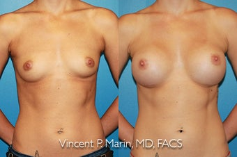 Breast Augmentation - Silicone Implants before 1053340