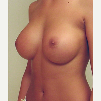 Breast Implants after 3241535