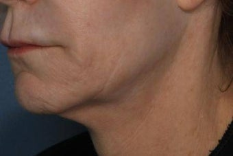 Female treated for Sagging Skin at Jawline before 772026