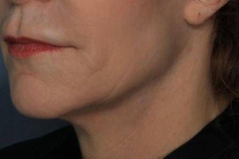 Female treated for Sagging Skin at Jawline after 772026