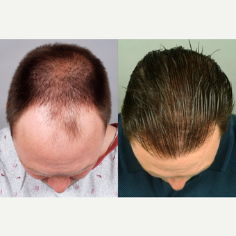 37 year old man showing density change after two FUT sessions of 6014 total grafts.