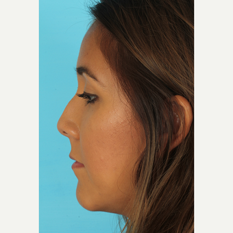 25-34 year old woman treated with Rhinoplasty before 3690949
