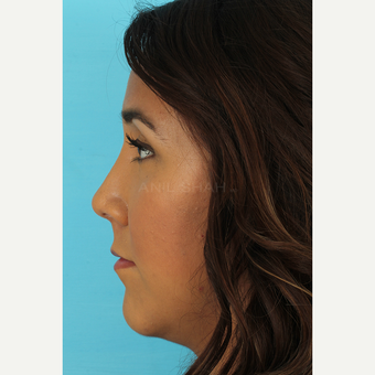 25-34 year old woman treated with Rhinoplasty after 3690949