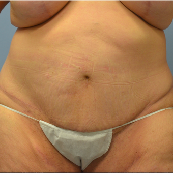 45-54 year old woman treated with Panniculectomy after 2448801