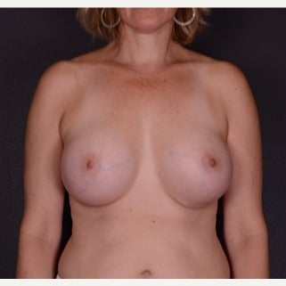45-54 year old woman treated with Mentor Breast Implants after 2596019